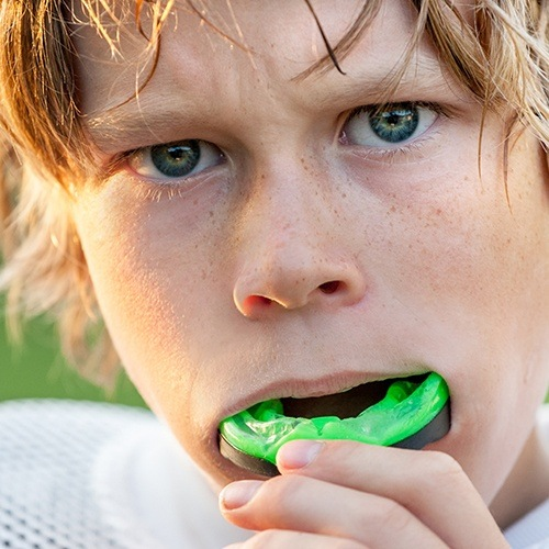 Teen placing an athletic mouthguard