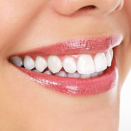 Closeup smile of flawless porcelain veneers
