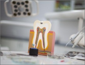 Model of healthy tooth after root canal therapy