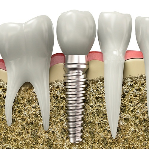 Animated dental implant osseointegration and abutment placement