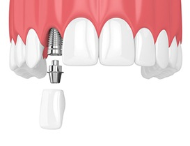 Two animated dental implant supported dental crowns
