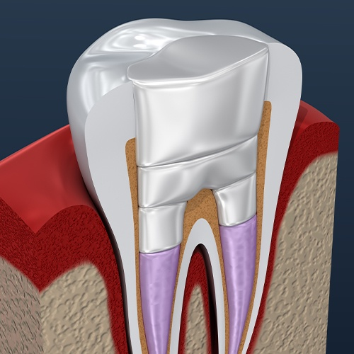 Animated tooth after root canal therapy