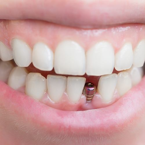 Smile with dental implant post visible