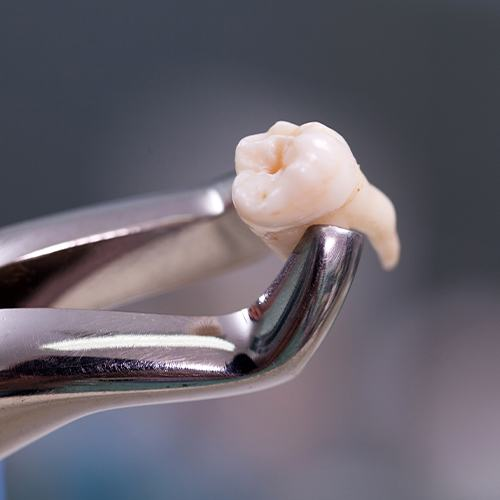 Metal clasp holding extracted wisdom tooth