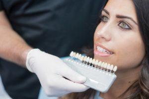 woman smiling, porcelain veneers, woman at dentist